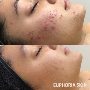 Skin needling for acne